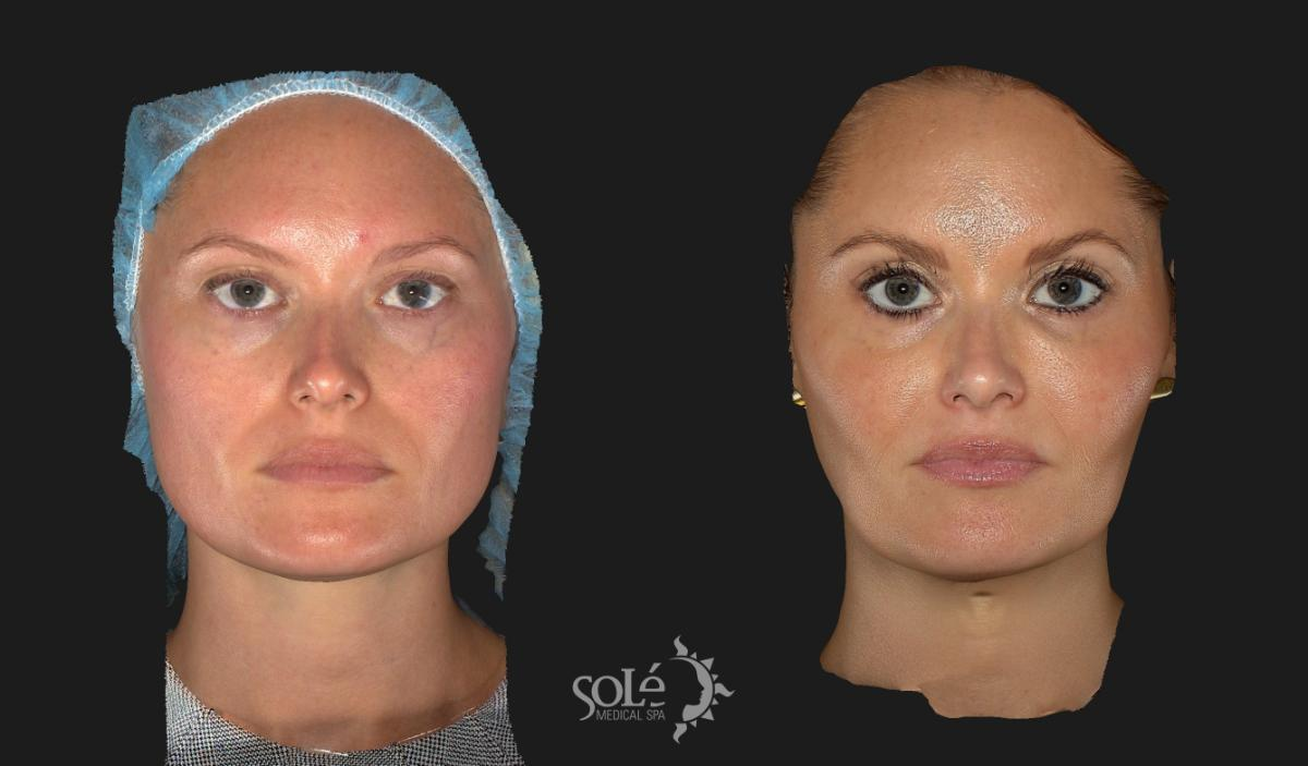 BOTOX® & Dysport® Case 10 Before & After Front | Tifton, GA | Solé Medical Spa
