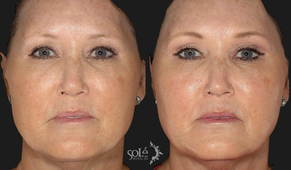 BOTOX® & Dysport® Case 16 Before & After Front | Tifton, GA | Solé Medical Spa
