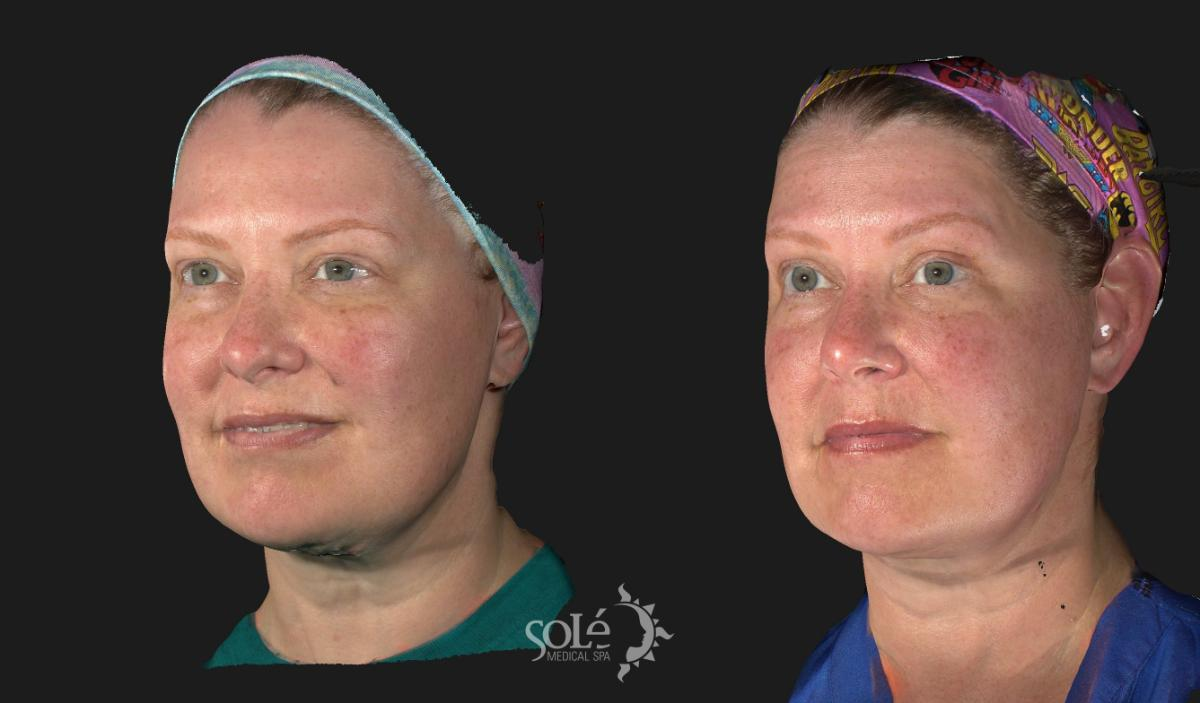 Dermal Fillers Case 14 Before & After Left Oblique | Tifton, GA | Solé Medical Spa