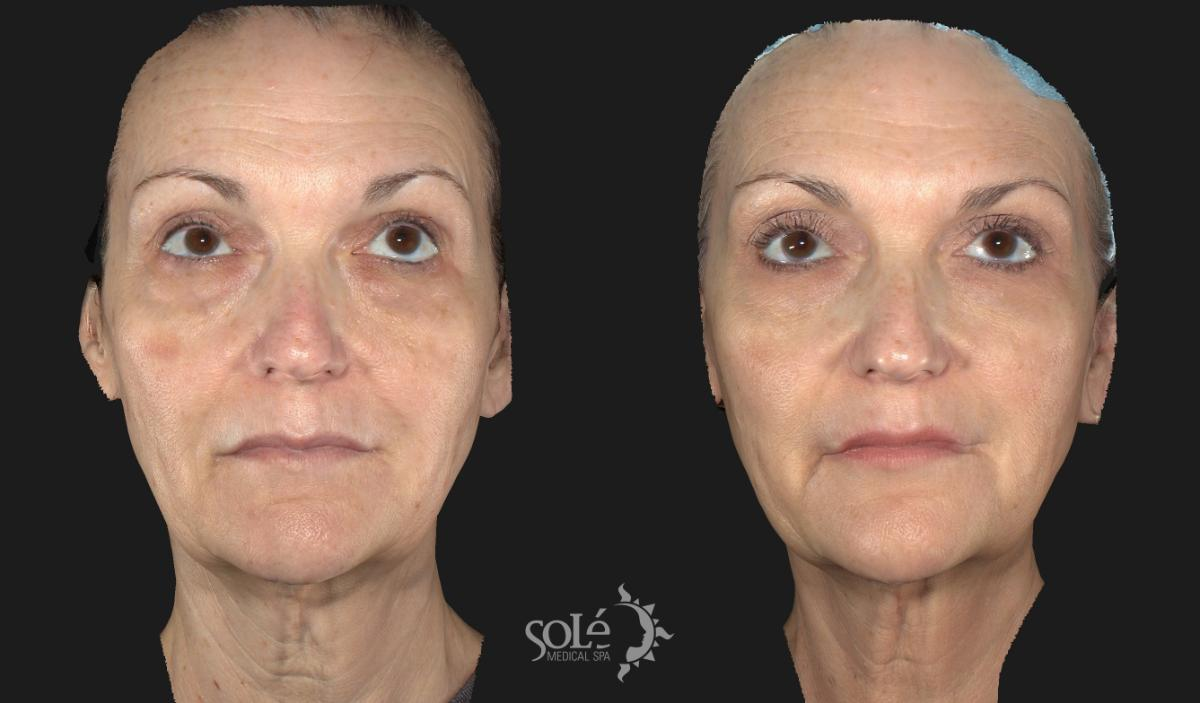 Laser Skin Rejuvenation Case 24 Before & After Front | Tifton, GA | Solé Medical Spa
