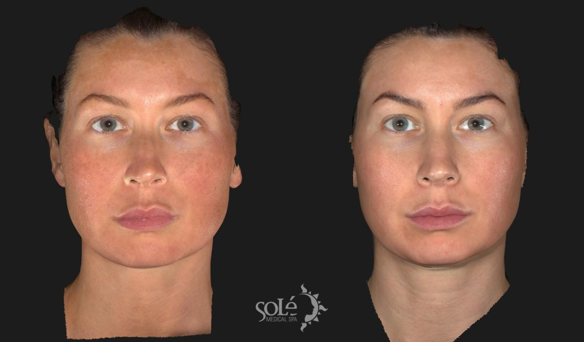 Laser Skin Rejuvenation Case 9 Before & After Front | Tifton, GA | Solé Medical Spa
