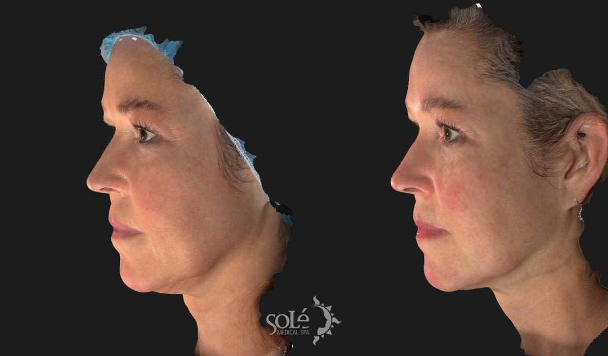 RF Body Contouring Case 29 Before & After Left Side | Tifton, GA | Solé Medical Spa